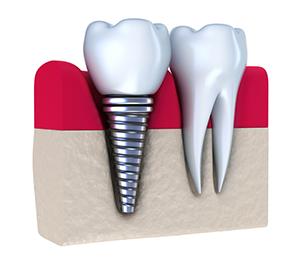 Cosmetic Dental Implants
