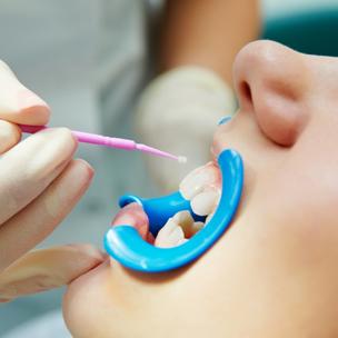 Dental Sealants Thumb