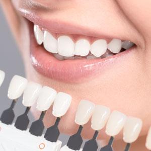 Teeth Whitening Charts Sq 300