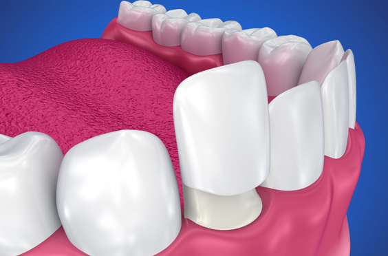 What Makes You A Viable Candidate For Dental Crowns