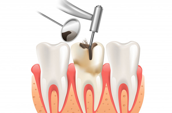 What Makes You A Viable Candidate For Root Canals