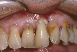 Periodontitis, What Is It
