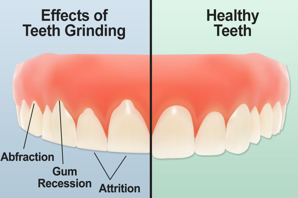 Teeth Or Clenching